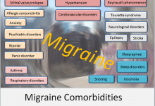 Things You Should Know About Migraine